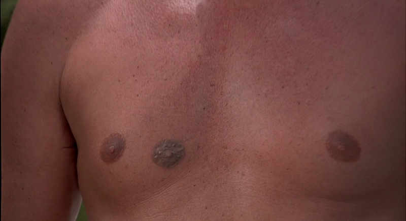 Bond's fake third nipple in The Man With The Golden Gun (1974)